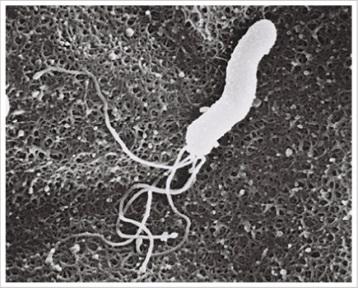 ピロリ菌の正式名は「ヘリコバクター・ピロリ」といい、ヘリコとは「らせん」や「旋回」、バクターとはバクテリア、ピロリとは胃の出口をさす「ピロルス」からきています。西オーストラリア大学のロビン・ウォーレン名誉教授とバリー・マーシャル教授がヘリコバクター・ピロリ(ピロリ菌)を発見し、 2005年のノーベル医学生理学賞を受賞しました。胃炎患者の胃粘膜に小さな曲がった未知の細菌であるピロリ菌を発見し、100人の患者の組織を調べた結果、胃炎や胃・十二指腸潰瘍患っているほとんど全ての患者でピロリ菌を確認しました。ピロリ菌の分離培養に成功し、マーシャル自身がピロリ菌を飲む実験により急性胃炎が起こることを確かめたそうです。