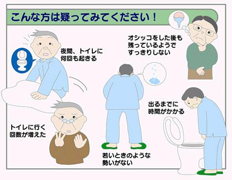 若いころは、気持ちよく尿が出せていたが、「尿の勢いが弱い」、「おっしこをする時、お腹に力を要する」「残尿感を感じる」、「昼間のトイレが近い」、「夜間のトイレが近い」、「急に尿意を催し、我慢できない」といった症状に心当たりがありませんか?心当たりのある方は「年のせい」とあきらめていませんか?